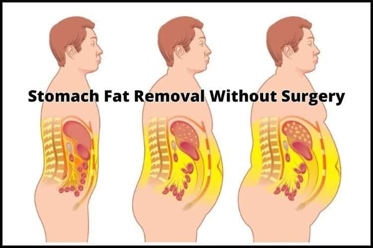 Stomach Fat Removal Without Surgery